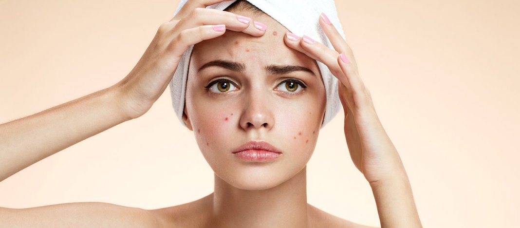 acne treatment Murad acne treatment products use proven topical acne medications to fight clogged pores and acne-causing bacteria see all of murad's acne treatments.